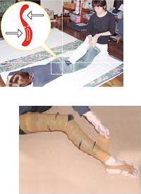 骨盤調整治療の様子(左写真)。その他、バンキによる吸角療法、ゴムバンドによる治療。下写真は天然ゴムバンドを足に巻いたところ。
